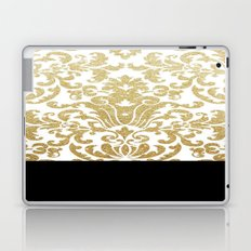 A Golden Kiss To Build A Dream On Laptop & iPad Skin