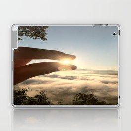 A Pinch of Sunshine Laptop & iPad Skin