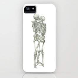 Love, kissing couple, skeleton, anatomy, human, kiss, relationship, marriage iPhone Case