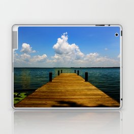 FL Laptop & iPad Skin