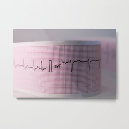Strip of a human electrocardiogram Metal Print
