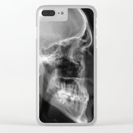 The Skull Clear iPhone Case