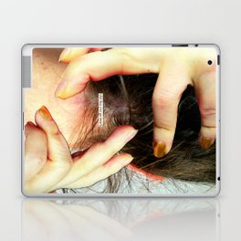 Do we wallow in our mental health issues because we think they make us more interesting as people an Laptop & iPad Skin