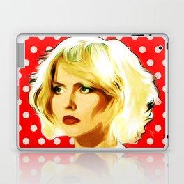 Blondie - Debbie Harry - Pop Art Laptop & iPad Skin