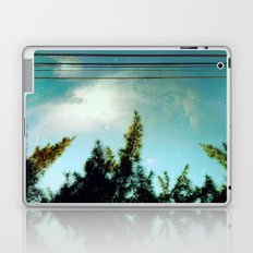 Beyond Laptop & iPad Skin