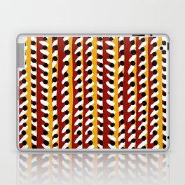 Band Laptop & iPad Skin