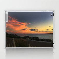 Rocking away at Castle Hill Laptop & iPad Skin