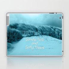 Sand and Kisses Laptop & iPad Skin