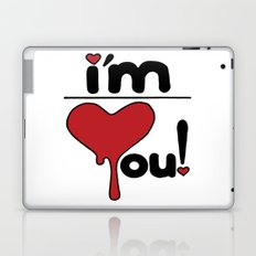 i'm over you! Laptop & iPad Skin