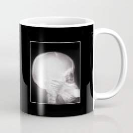 Foot In Mouth X-Ray Coffee Mug