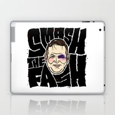 SMASH THE FASH Laptop & iPad Skin