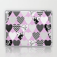 Hearts And Love - Black and white, geometric Pattern Laptop & iPad Skin