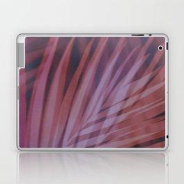 Shadows of Summer II Laptop & iPad Skin