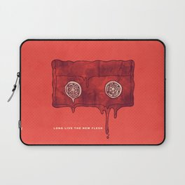 Videodrome Laptop Sleeve