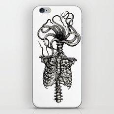 Curiosities - The Plaga iPhone Skin