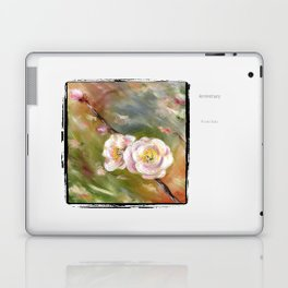 Anniversary Laptop & iPad Skin