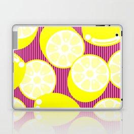 Lem'ie Ask You A Question Laptop & iPad Skin