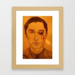 Bruised Eye. Framed Art Print