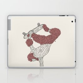 Handplant Laptop & iPad Skin