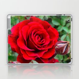 Rose revolution Laptop & iPad Skin