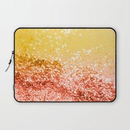 Tropical Summer Lady Glitter #2 #shiny #decor #art #society6 Laptop Sleeve