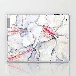 Hot Rods Laptop & iPad Skin
