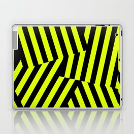 Razzle Dazzle Laptop & iPad Skin