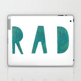 Rad - Green Laptop & iPad Skin