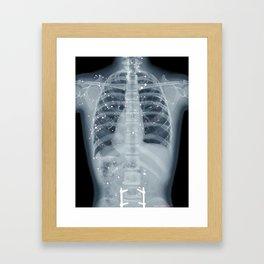 Situs Inversus Framed Art Print