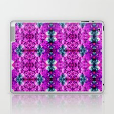 What If you fly? Laptop & iPad Skin