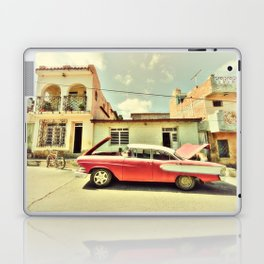 Trinidad Edsel Laptop & iPad Skin