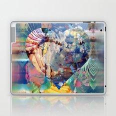 #Love Laptop & iPad Skin