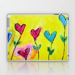 Amor de colores Laptop & iPad Skin