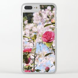 Up and coming Clear iPhone Case