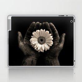 Raised Laptop & iPad Skin