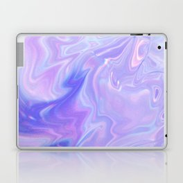 PASTEL DREAMS Laptop & iPad Skin