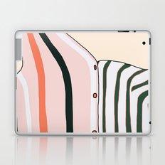 Unbutton Laptop & iPad Skin