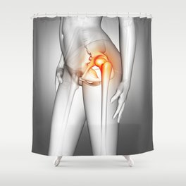 3D female medical figure with hip bone highlighted Shower Curtain