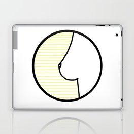 Citron Laptop & iPad Skin