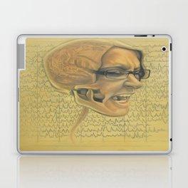EEG Laptop & iPad Skin