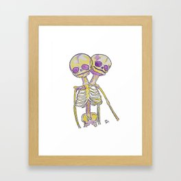 Conjoined Twins Siamese Twins Skeleton Watercolor Framed Art Print
