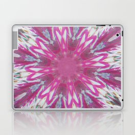 Love. Mad. Love. Mad. Love. Laptop & iPad Skin