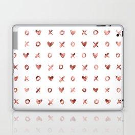 XOXO Love Me Rose Gold Pattern Laptop & iPad Skin