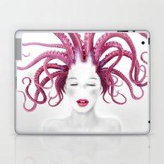 Sense Laptop & iPad Skin