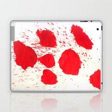 SPLATZ Laptop & iPad Skin