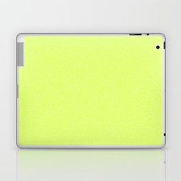 Dense Melange - White and Fluorescent Yellow Laptop & iPad Skin