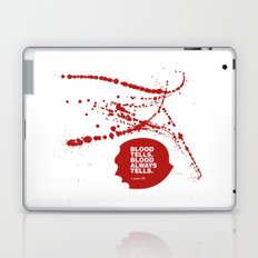 Dexter no.1 Laptop & iPad Skin