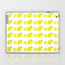lemon Laptop & iPad Skin