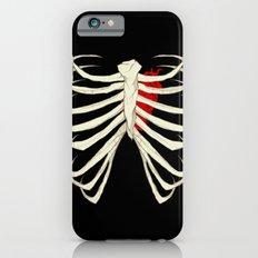 Skeleton iPhone 6s Slim Case