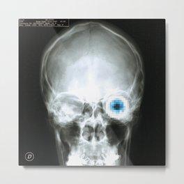 Rx_eye Metal Print